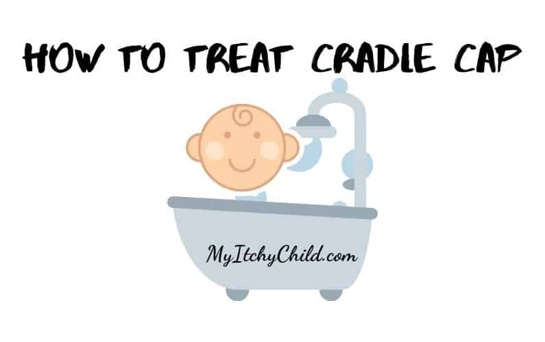 Best Way to Treat Cradle Cap