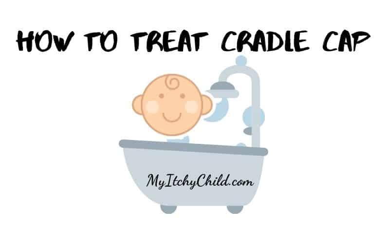 Best Way to Treat Cradle Cap