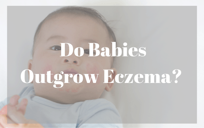 Did Your Baby Outgrow Eczema