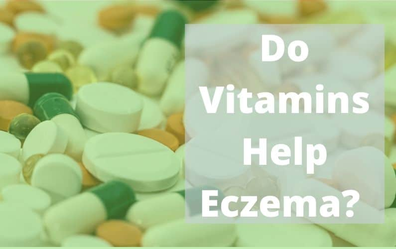 vitamins for eczema sufferers