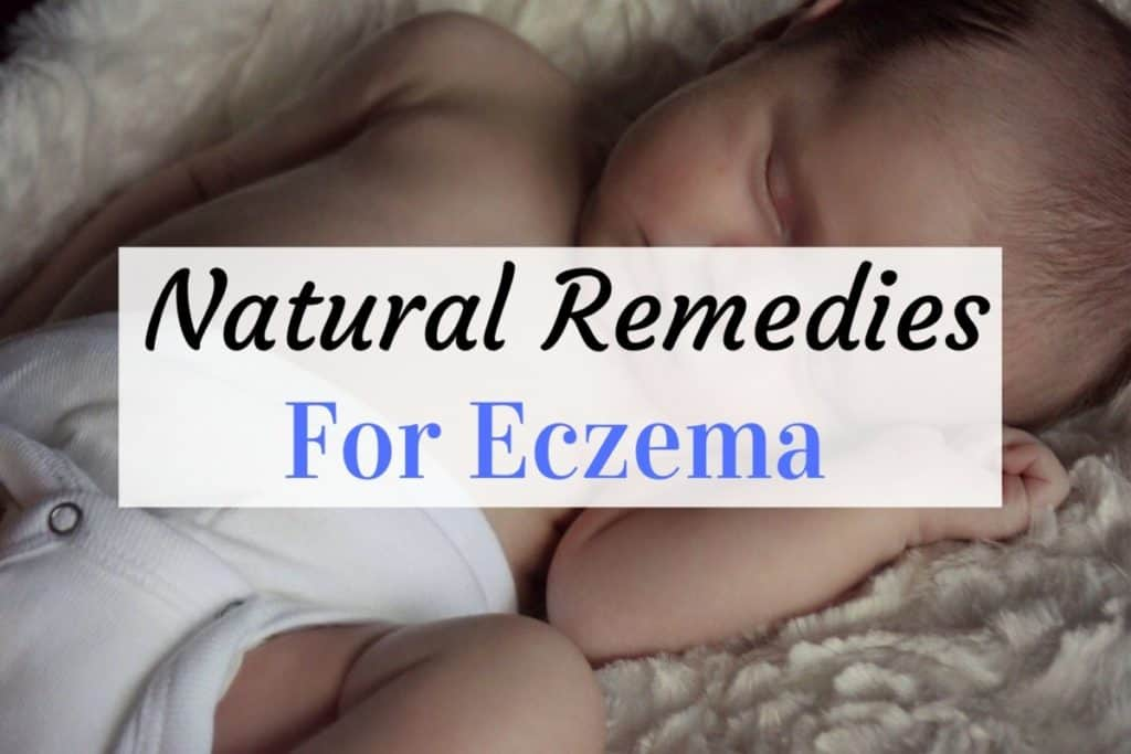stop eczema itch naturally