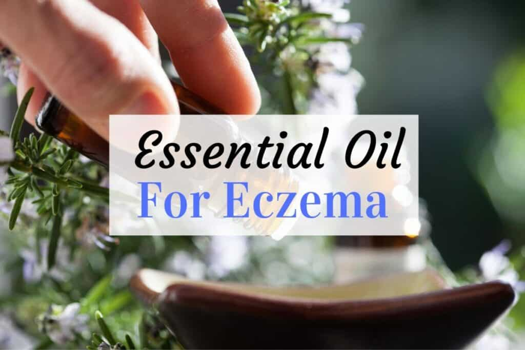 essential oil for baby eczema