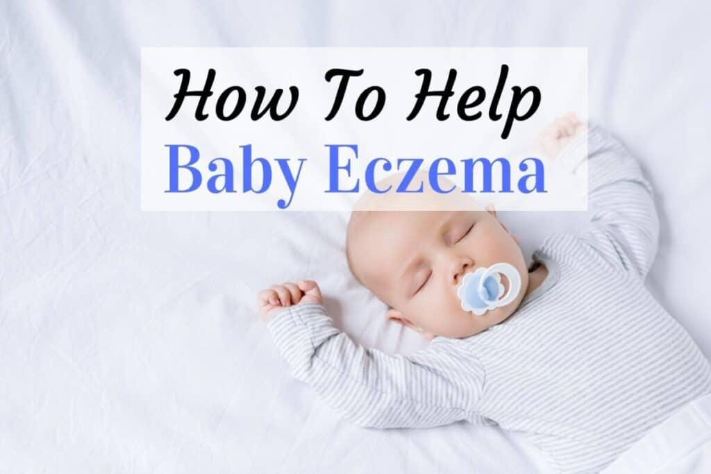 how to help baby eczema