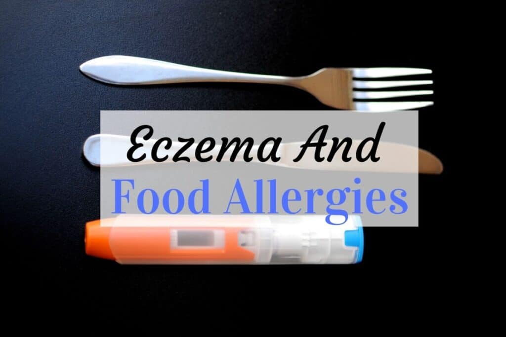 eczema and food allergies in babies